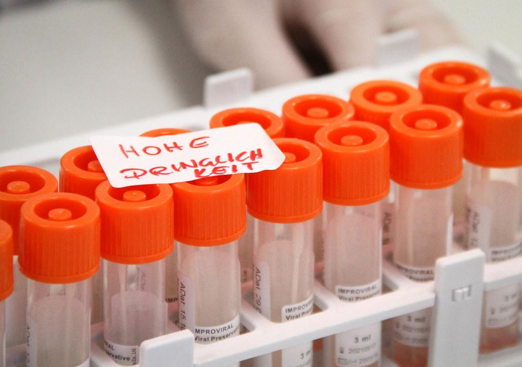 In Salzburg werden alle positiven PCR-Tests vorsequenziert, um möglichst zeitnah zu erfahren, ob ein Verdacht auf Mutation besteht.
